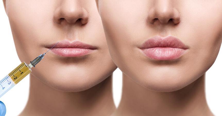 dudak dolgusu nasıl yapılır