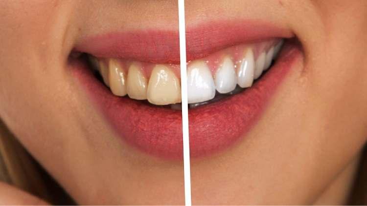 Diş estetiği nedir ve nasıl yapılır? Zirkonyum diş estetiği nedir?