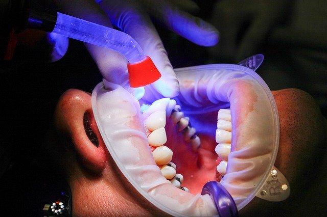 Diş hekimlerine göre en iyi 10 evde diş beyazlatma seti
